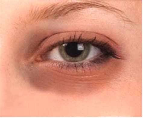 eye makeup tips for aging tired eyes picture 1