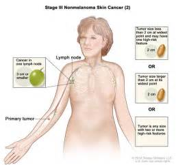 treatment for colon cancer if spread to one lymph node picture 14