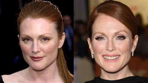 celebrities who are aging picture 2