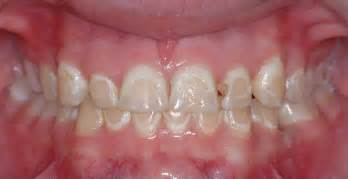 decalcification of teeth picture 3