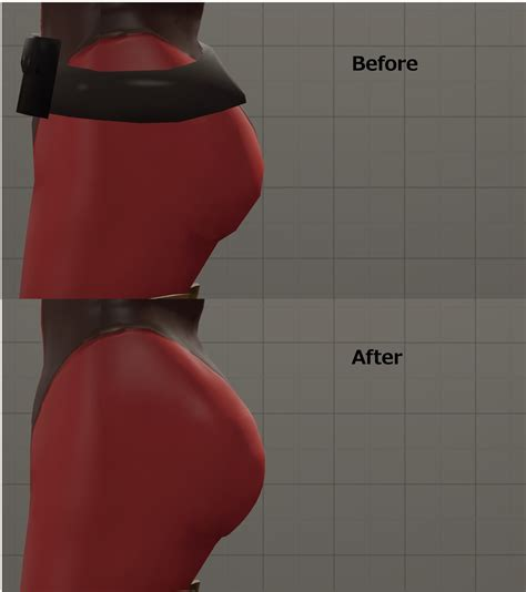 fempryo breast growth picture 14