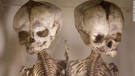 human body oddities picture 6