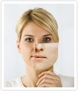 clearpores facial picture 2