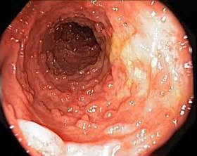 diseased colon picture 1