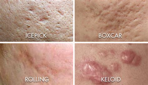 dermatologists for black skin picture 7