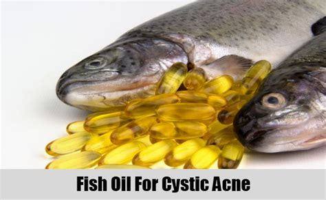fish oil cures acne picture 2