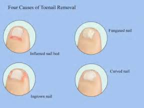 toenail removal surgery fungus picture 2