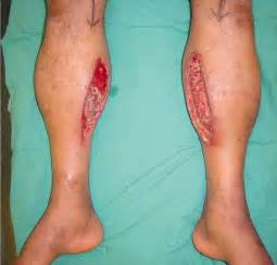 muscle in legs disease picture 13