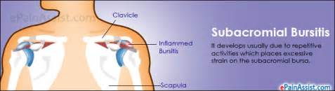 diet bursitis picture 2