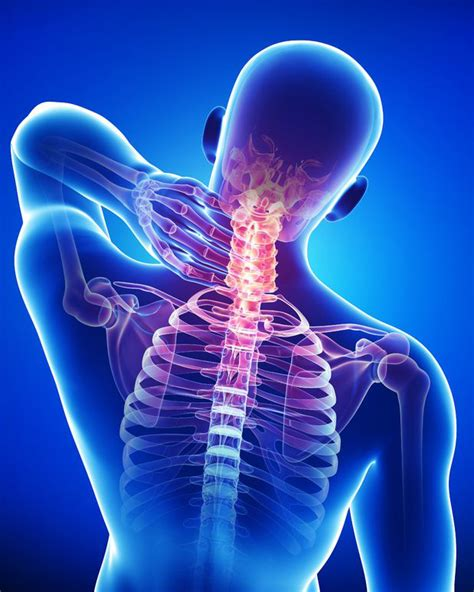 chronic neck and joint pain picture 5