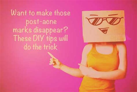 how to treat post acne marks picture 5