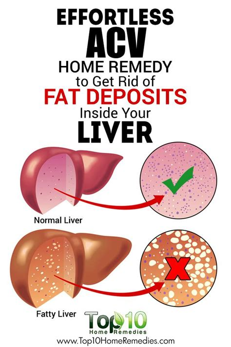 foods for liver disease picture 11
