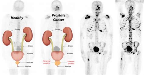 terminal prostate cancer symptoms picture 9