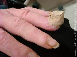 how do you get nail fungus picture 6
