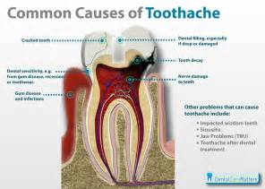 best pain killer for tooth ache picture 1