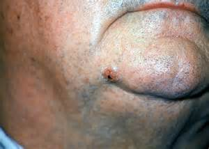 dermatologist skin tumors picture 7
