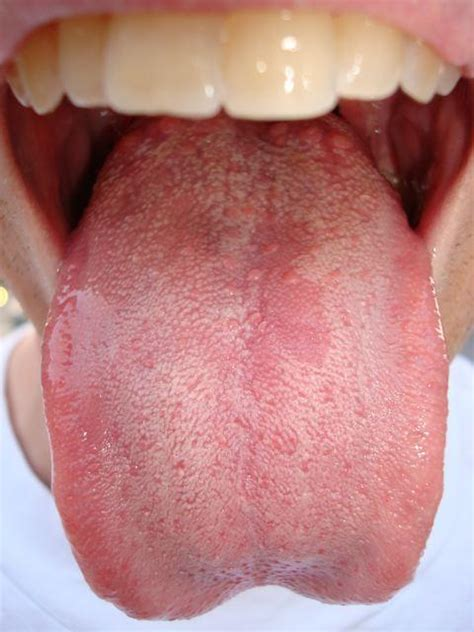 yeast infection of the mouth picture 15