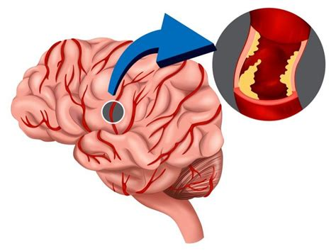 causes of blood clot in brain picture 13