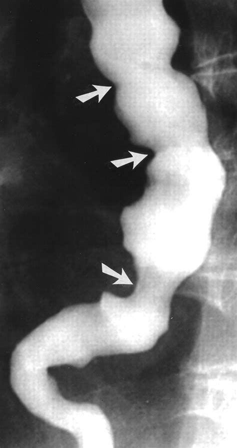 chronic cricopharyngeal spasm treatment picture 9