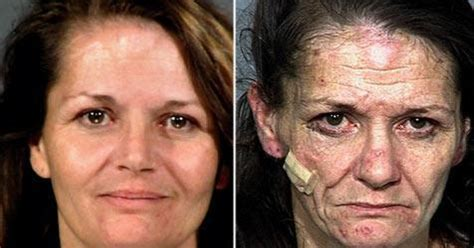 meth mouth aging effects picture 14