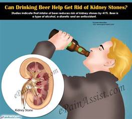 can drinking beer cause bladder infections picture 2