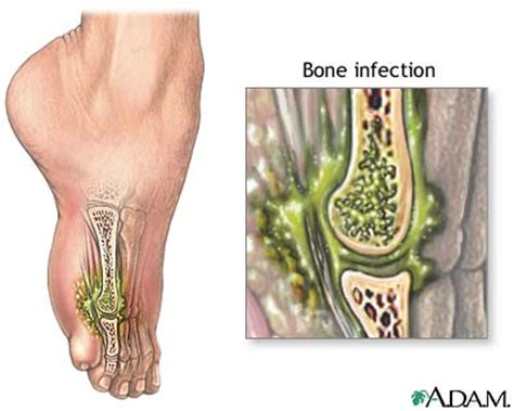 yeast infection in knee joint picture 19