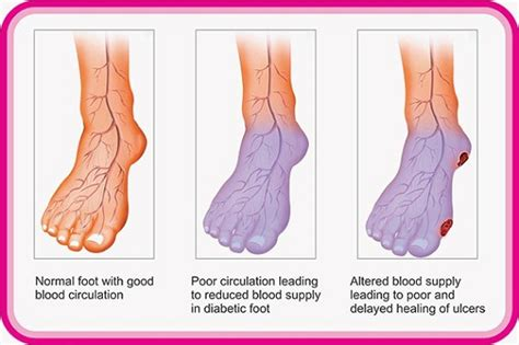 poor blood circulation in feet picture 9