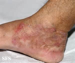 symptom skin fungus picture 10