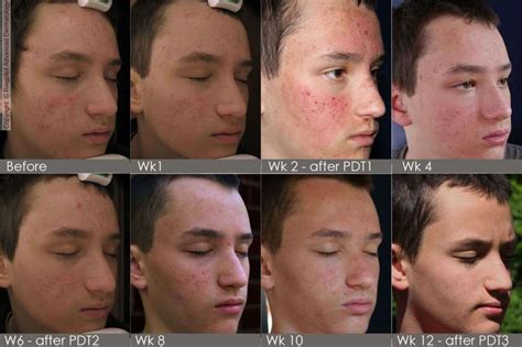 european for acne picture 15