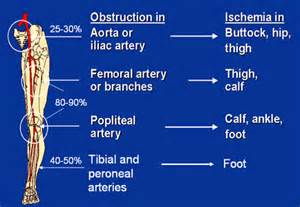 disease muscle ache loss picture 18