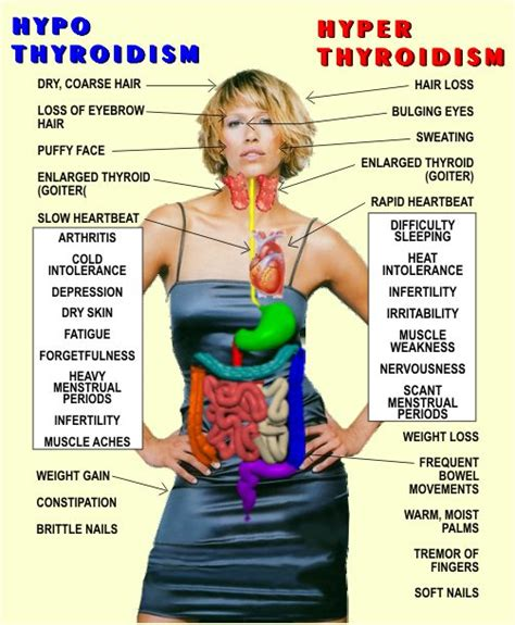 thyroid eye disease treatment picture 9