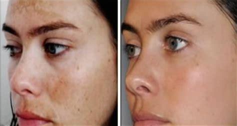 acne bleaching cream picture 9