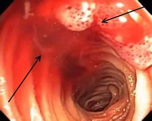 bleeding in the gastrointestinal tract treatment picture 8