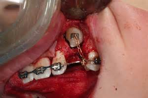dental tooth extraction of the canine h picture 6