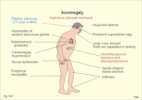 acromegaly penis picture 5