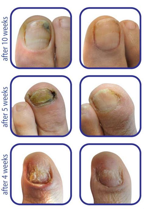 laser nail fungus oklahoma picture 1