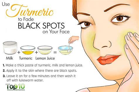 Acne milk picture 14
