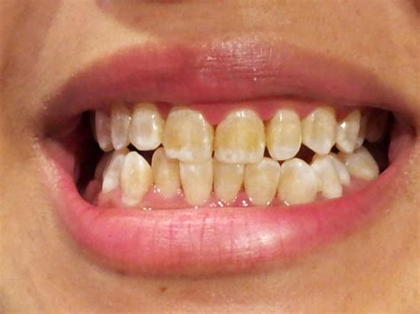 fluoride treatment for teeth picture 1