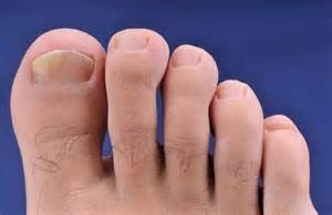 pinpoint toe fungus pa picture 10