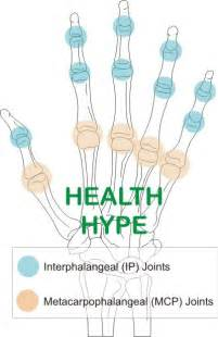 first finger joint pain picture 9