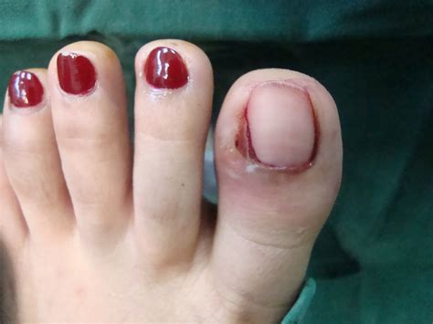 self removal of ingrown toenail picture 2