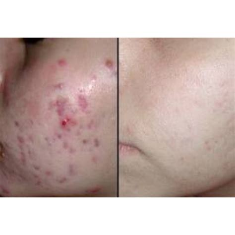 fraxel for acne scars picture 2