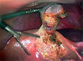 gall bladder after effects picture 5
