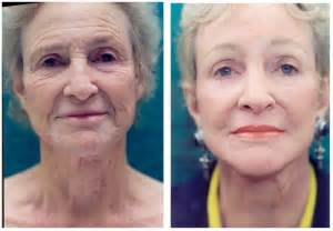 antiaging picture 2