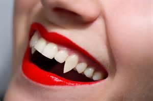vampire teeth picture 10