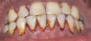 cigars teeth picture 15