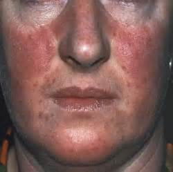 can a strenous workout harm acne picture 15