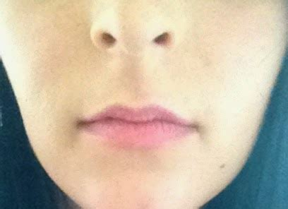 can diabetics use lip voltage? picture 13