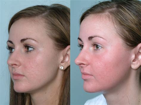 pictures of fraxel laser before and after for picture 3
