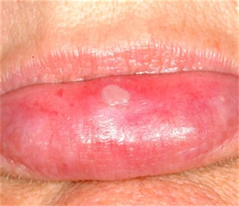 can enzymes cause herpes on lips picture 2